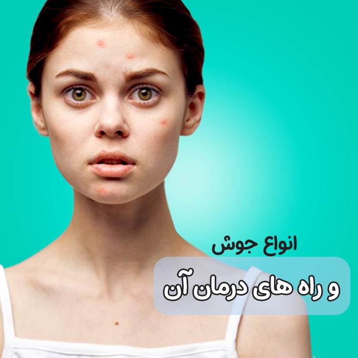 انواع جوش صورت، علائم و درمان